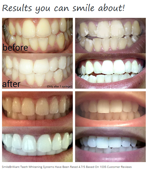 SmileBrilliant Teeth Whitening System!